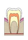bild karies i tand 1