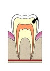bild karies i tand 3